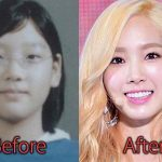 Taeyeon Plastic Surgery Before and After Pictures