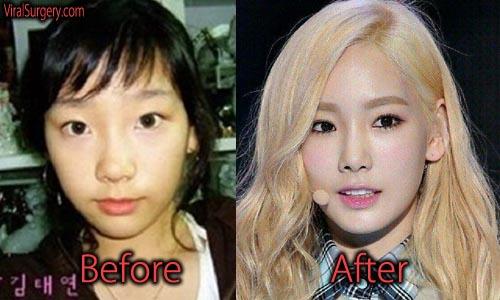 Taeyeon Plastic Surgery Nose Job