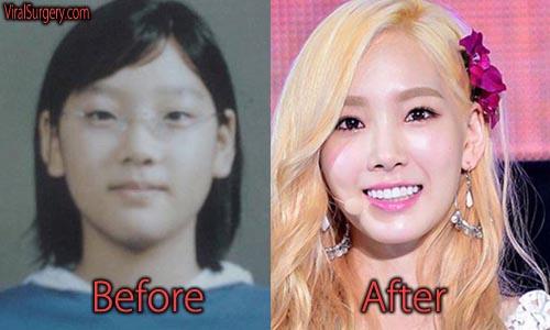 Taeyeon Plastic Surgery