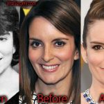 Tina Fey Plastic Surgery Before and After Botox Pictures
