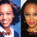 Tyra Banks Plastic Surgery Before and After Pictures