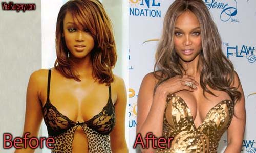 Tyra Banks Plastic Surgery Picture