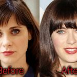 Zooey Deschanel Plastic Surgery Before and After Pictures