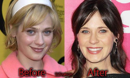 Zooey Deschanel Plastic Surgery Nose Job