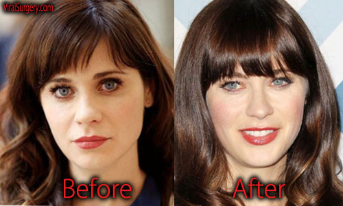 Zooey Deschanel Plastic Surgery Pictures
