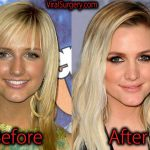 Ashlee Simpson Plastic Surgery, Before After Nose Job Pictures