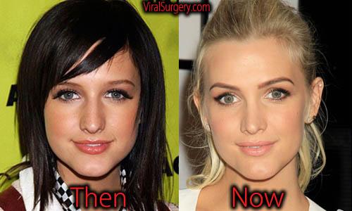 Ashlee Simpson Plastic Surgery Botox