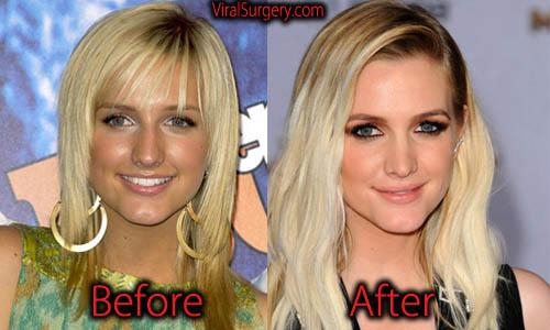 Ashlee Simpson Plastic Surgery