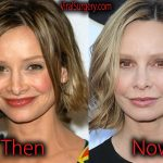 Calista Flockhart Plastic Surgery, Before After Botox Pictures