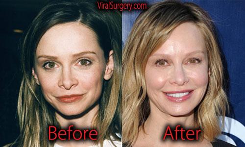 Calista Flockhart Plastic Surgery Botox