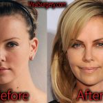 Charlize Theron Plastic Surgery Before and After Nose Job Pictures