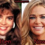 Denise Richards Plastic Surgery, Before and After Pictures