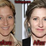 Edie Falco Plastic Surgery, Before and After Botox Pictures