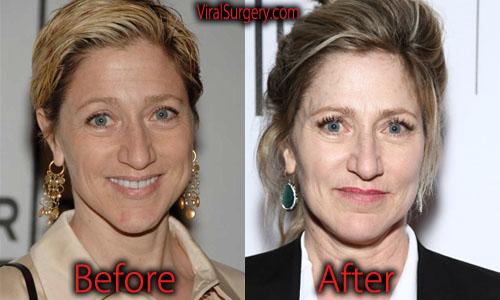 Edie Falco Plastic Surgery