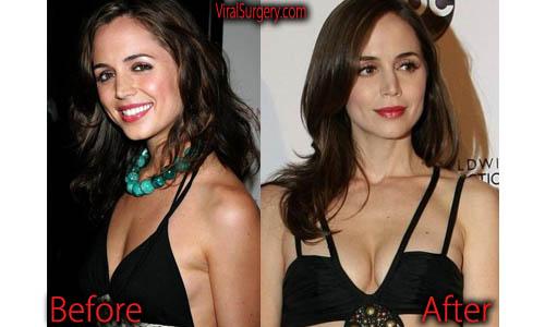 Eliza Dushku Plastic Surgery Boob Job