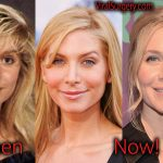 Elizabeth Mitchell Plastic Surgery, Before After Facelift Pictures