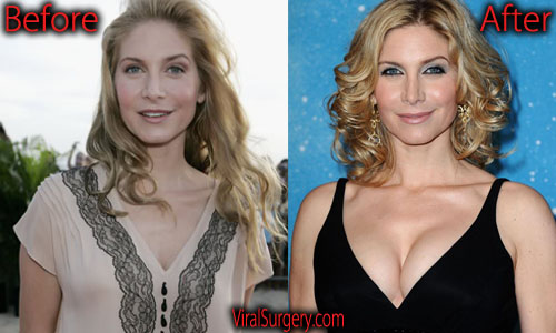 Elizabeth Mitchell Plastic Surgery Boob Job