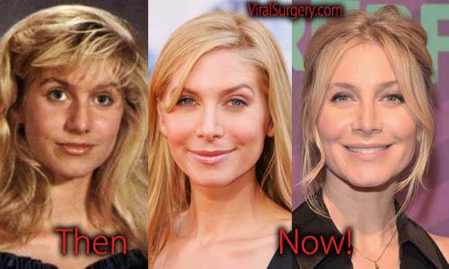 Elizabeth Mitchell Plastic Surgery