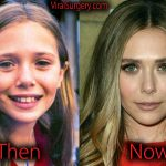 Elizabeth Olsen Plastic Surgery Before and After Nose Job Pictures
