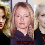 Ellen Barkin Plastic Surgery, Before and After Botox Pictures