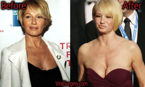 Ellen Barkin Plastic Surgery, Boob Job
