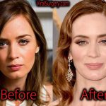 Emily Blunt Plastic Surgery, Before and After Botox Pictures