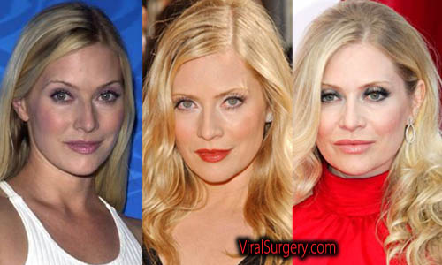 Emily procter plastic surgery before after