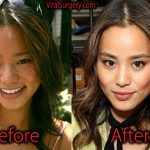 Jamie Chung Plastic Surgery, Before and After Pictures