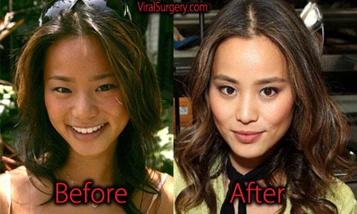 Jamie Chung Plastic Surgery