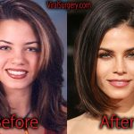 Jenna Dewan Plastic Surgery Before and After Pictures