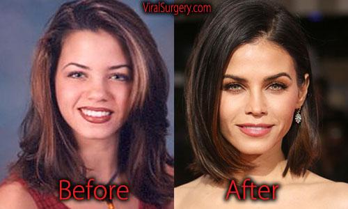 Jenna Dewan Plastic Surgery