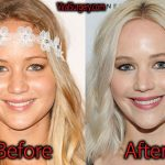 Jennifer Lawrence Plastic Surgery Before and After Pictures