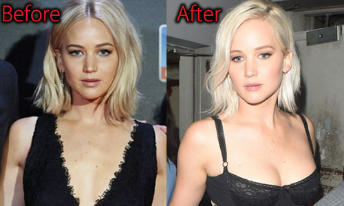 Jennifer Lawrence Plastic Surgery Boob Job