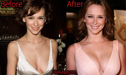 Jennifer Love Hewitt Plastic Surgery, Boob Job
