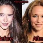 Jennifer Love Hewitt Plastic Surgery, Before and After Pictures