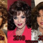 Joan Collins Plastic Surgery, Before and After Facelift Pictures