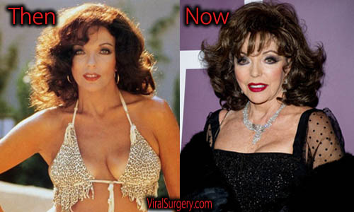 Joan Collins Plastic Surgery Boobs Job