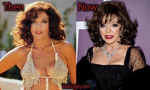 Joan Collins Plastic Surgery Boobs Job