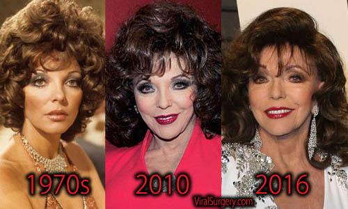 Joan Collins Plastic Surgery