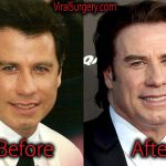 John Travolta Plastic Surgery, Before and After Botox Pictures