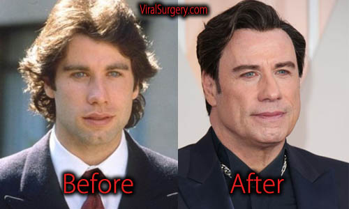 John Travolta Plastic Surgery Before And After Botox Pictures