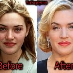 Kate Winslet Plastic Surgery, Before and After Pictures