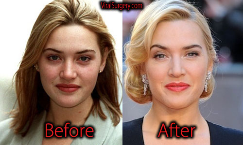 Kate Winslet Plastic Surgery