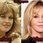 Melanie Griffith Plastic Surgery, Before and After Facelift Pictures