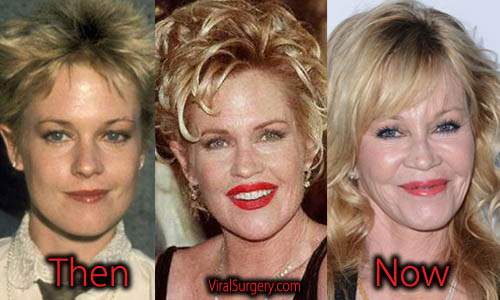 Melanie Griffith Plastic Surgery Facelift