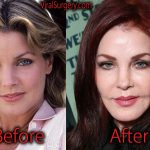 Priscilla Presley Plastic Surgery, Before and After Facelift Pictures