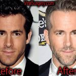 Ryan Reynolds Plastic Surgery Before and After Pictures