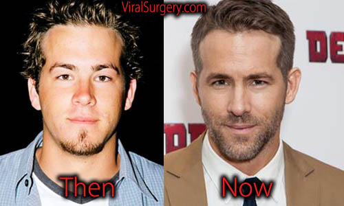 Ryan Reynolds Plastic Surgery Picture
