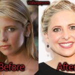 Sarah Michelle Gellar Plastic Surgery, Before and After Pictures