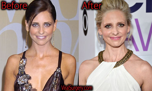 Sarah Michelle Gellar Plastic Surgery